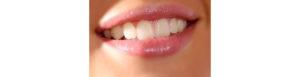 Günstige Zahnkorrektur in der Türkei