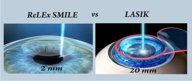 ReLex Smile Lasik